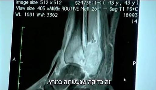 Therese-MRI-1