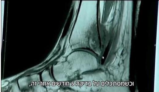 Therese-MRI-2